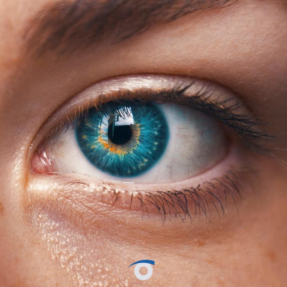 control miopia misight